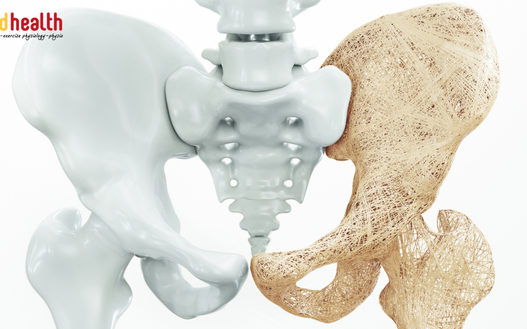 What is the best Exercise for Osteoporosis?