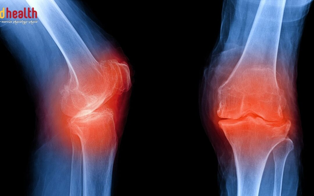 Does running effect your knees?